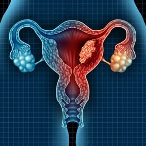 Uterine Cancer Treatment