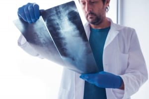 doctor analyzing spinal X ray