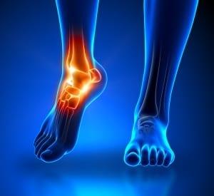 Rheumatology, ankylosing spondylitis, pain in the ankle