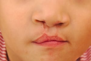 cleft lip repaired