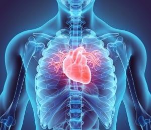 Aorta, heart surgery