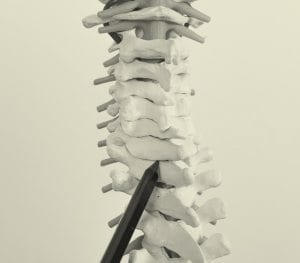 narrowing of the spinal canal, technically ,spinal stenosis