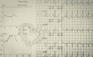 Ekg Or Ecg. electrocardiogram