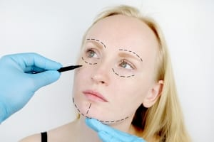 Facial plastic surgery or facelift