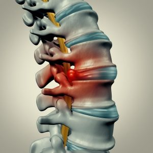 herniated disc illustration , back pain