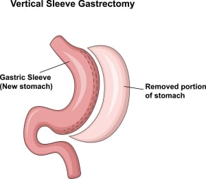 illustration of a gastric sleeve