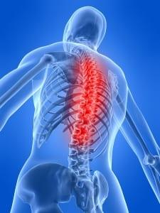 Cervical Disc Herniation, skeletal back pain